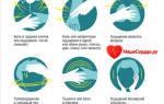 Состояние перед инфарктом симптомы