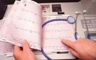 Как лечить ишемию сердца народными средствами