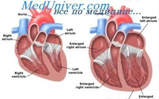 Застойная сердечная недостаточность симптомы