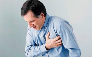 Боль при стенокардии сколько длится