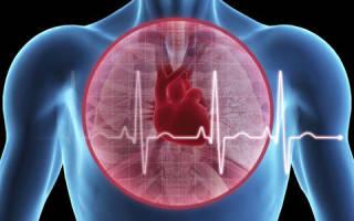 Застойная пневмония при сердечной недостаточности