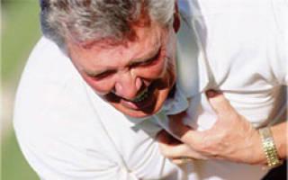 Как выражается сердечная недостаточность симптомы