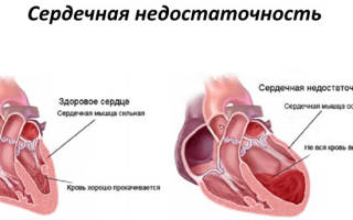 Причины сердечной недостаточности у женщин