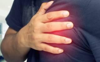 Что такое стенокардия и тахикардия