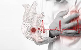 Признаки инфаркта у мужчин старше 60 лет