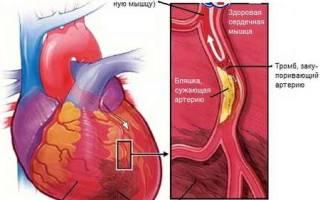 Как определить инфаркт миокарда по самочувствию