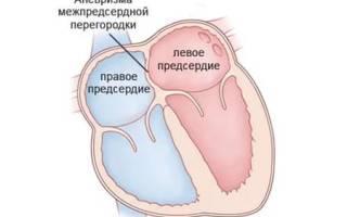 Аневризма межпредсердной перегородки порок сердца