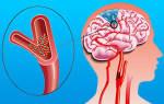 Осложнения инфаркта миокарда в остром периоде