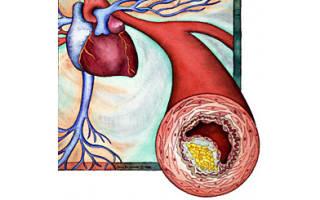 Что такое стабильная стенокардия