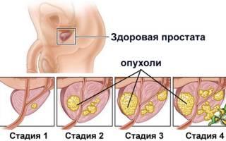 Гипертензия предстательной железы