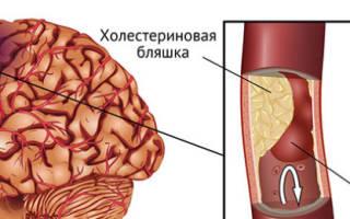 Ишемический инфаркт головного мозга что это такое