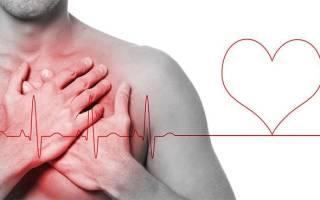 Какое давление при инфаркте