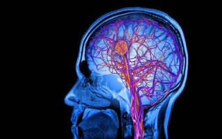Лакунарный инфаркт головного мозга последствия