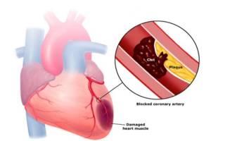 Обширный инфаркт миокарда прогнозы