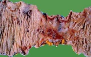 Ишемия кишечника симптомы