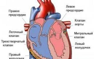 Недостаточность сердечных клапанов
