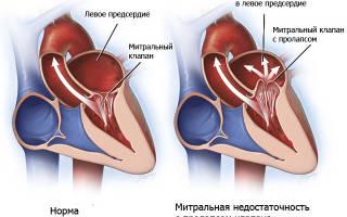 Порок сердца в пожилом возрасте