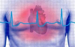 Виды сердечной аритмии