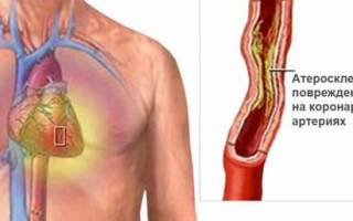 Как отличить стенокардию от остеохондроза