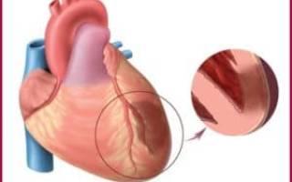 Абдоминальная форма инфаркта миокарда симптомы