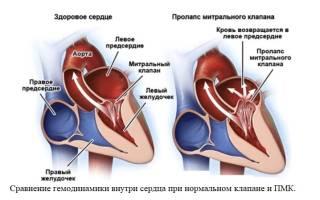 Пмк это порок сердца или нет