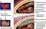 Фиброз печени портальная гипертензия