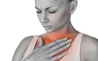 Признаки стенокардии у женщин старше 50