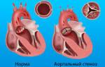 Порок сердца операция как проходит