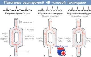 Пароксизмальная реципрокная ав узловая тахикардия