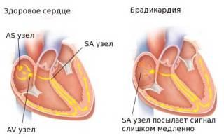 Чем снизить давление при брадикардии