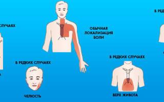 Лечение стенокардии препараты и дозы таблица