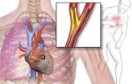 Ишемический инфаркт сердца