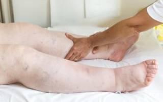 Сердечная недостаточность отеки ног кистей рук