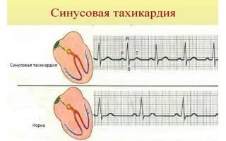 Тахиаритмия и тахикардия разница