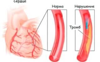 Доврачебная помощь при приступе аритмии