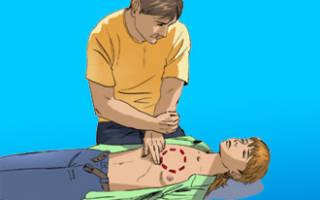 Инфаркт первая помощь до приезда скорой