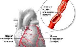 Признаки ишемии сердца у мужчин