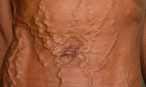 Портальная гипертензия голова медузы