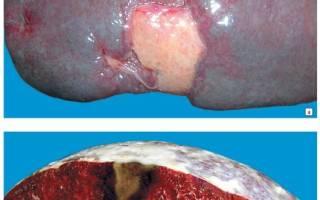 Ишемический инфаркт селезенки