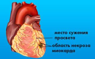 Мелкоочаговый инфаркт миокарда экг