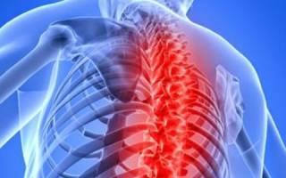 Аритмия при остеохондрозе