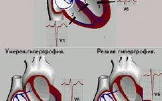 Гипертензия правого желудочка сердца