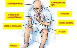 Оказание неотложной помощи при сердечной недостаточности