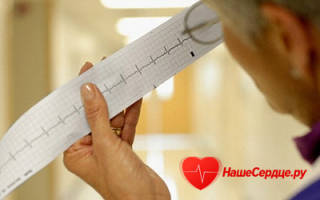 Как проявляется аритмия сердца