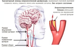 Транзиторная ишемия головного мозга