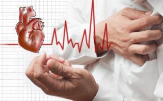 Ангинозная форма инфаркта миокарда