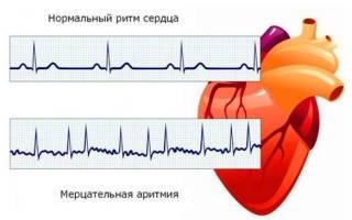 Приступ мерцательной аритмии симптомы