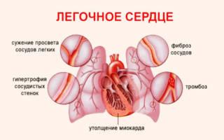 Сердечно легочная недостаточность симптомы