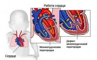 Врожденный порок сердца дефект межжелудочковой перегородки