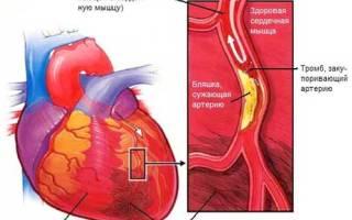 Что такое левожелудочковая сердечная недостаточность